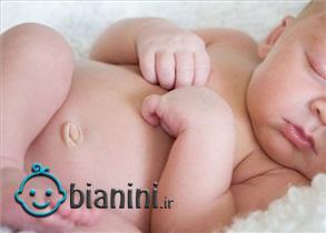 فتق نافی نوزاد چیست؟