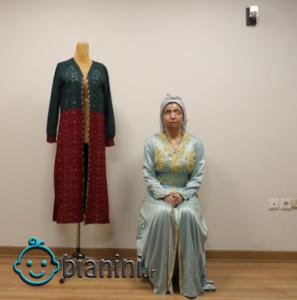 مدلینگ لباس؛ شغل جدید قربانی اسیدپاشی در ایران