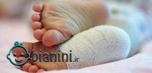 ۸۰ درصد کودکان اختلال اسکلتی دارند