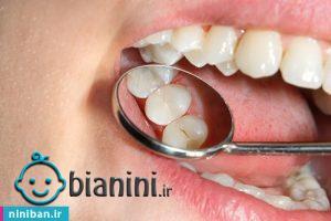 قیمت کامپوزیت دندان سال ۱۴۰۰