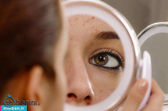 صابون ضد جوش و تنظیم کننده چربی صورت برای انواع پوست