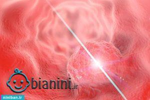 انواع لیزر درمانی