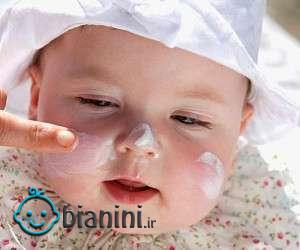 آفتاب سوختگی کودک