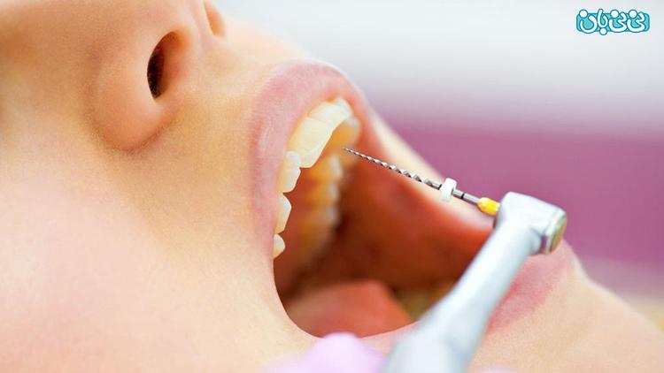 درد بعد از درمان ریشه دندان