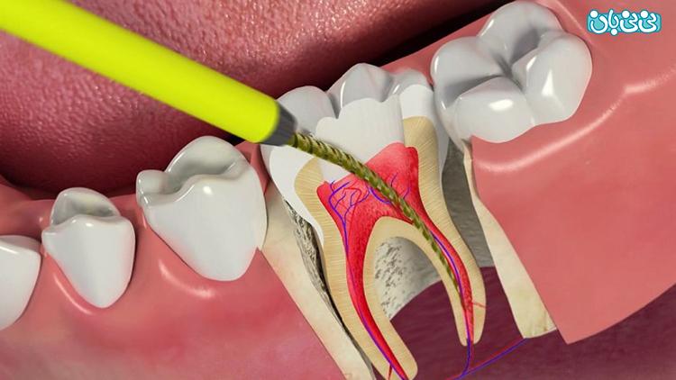 درمان ریشه دندان، چه زمان نیاز است؟